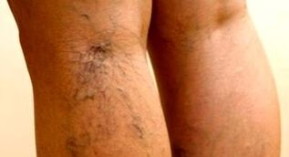 effective ways to treat varicose veins